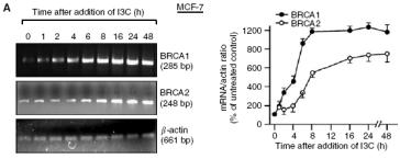 BRCA1 a BRCA2